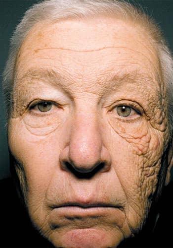 日光が肌に与える老化の影響を示す顔の画像